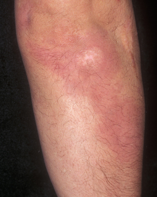 Effective Treatment for Psoriasis