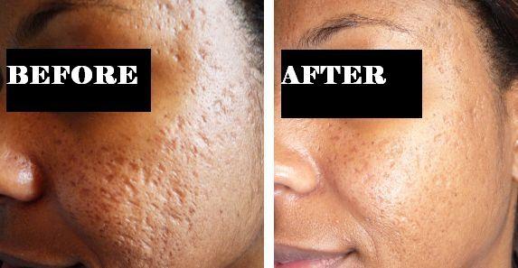 Acne Scar Removal Treatment Vizag Pimple Specialist Visakhapatnam