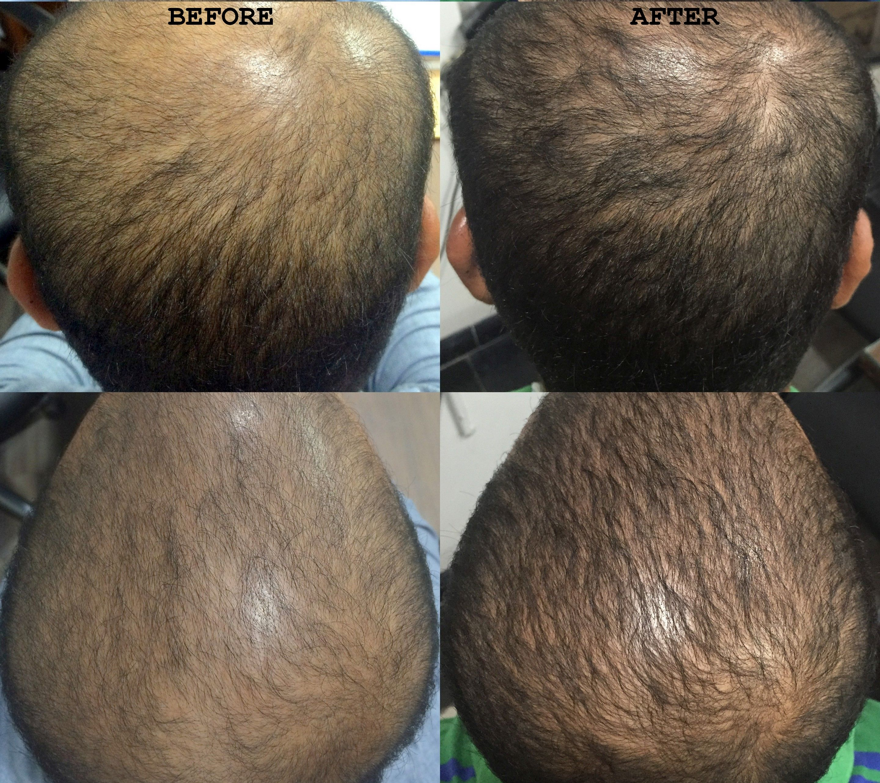 Platelet Rich Plasma Therapy Prp Visakhapatnam Hair Loss