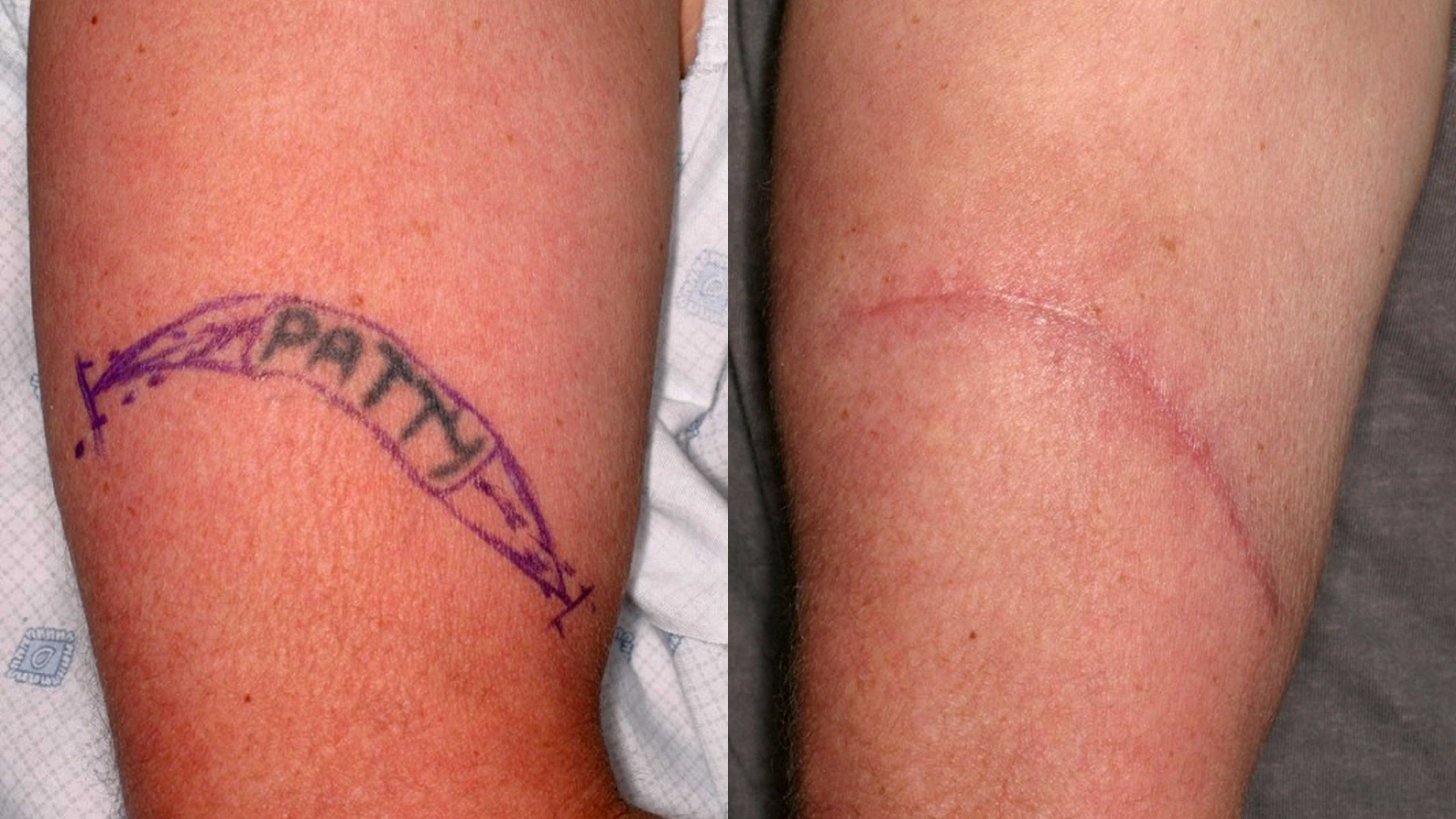 laser removal surgery and other methods